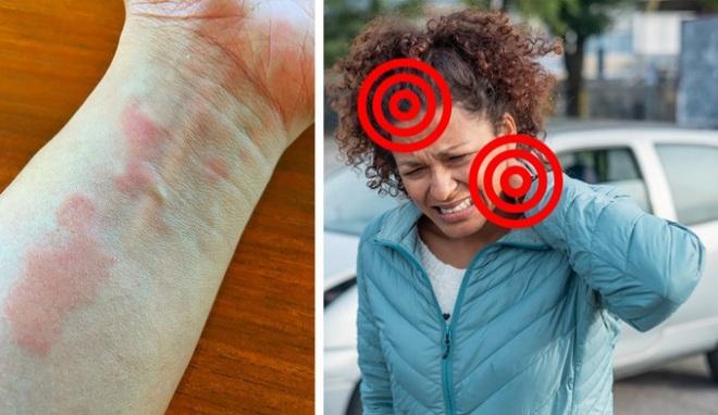 Bệnh xương khớp có thể trở nên rất nguy hiểm nếu bỏ qua 7 dấu hiệu cảnh báo - Ảnh 12.