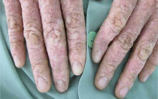 11 nguyên nhân có thể gây bệnh gan - Ảnh 12.