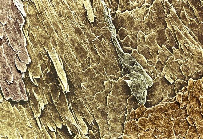 16 phần trên cơ thể trông như thế nào dưới kính hiển vi: Bạn sẽ ngạc nhiên khi nhìn thấy - Ảnh 16.