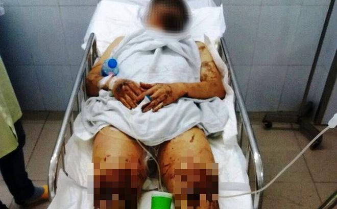 Việt kiều Canada bị tạt axit, cắt đứt gân chân khi về quê ăn Tết