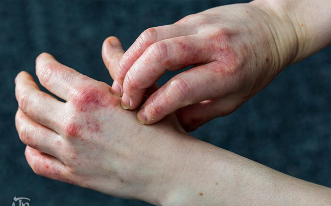 bệnh eczema là gì