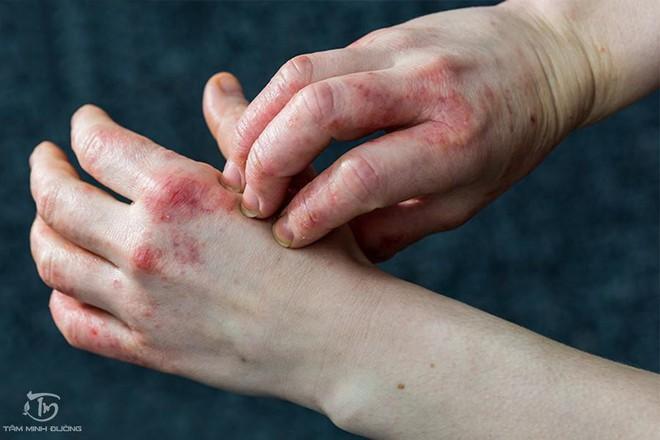 Bệnh eczema là gì? Nguyên nhân, triệu chứng và cách chữa hiệu quả - Ảnh 1.