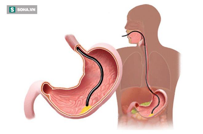 4 thói quen ăn uống rất có hại cho hệ tiêu hóa: Nếu ăn trong lâu dài thì dạ dày sẽ hỏng - Ảnh 1.
