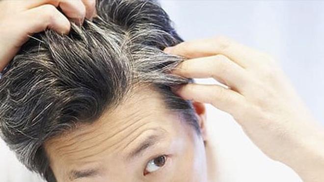 TS.BS BV Da liễu TW: Cảnh báo mắc 1 trong 3 thói quen sau khiến cho tóc bạc sớm trước tuổi - Ảnh 1.