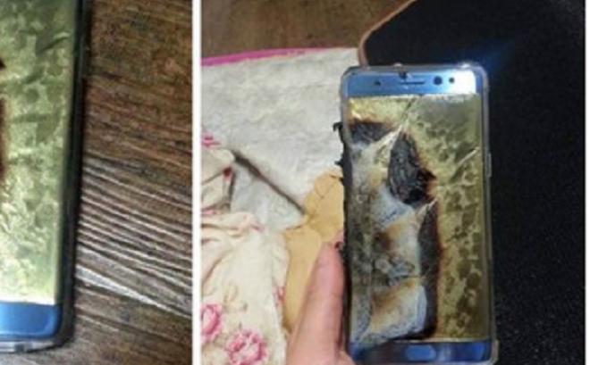 Thiếu niên 16 tuổi bị bỏng nặng do nổ điện thoại khi sạc pin và chơi game