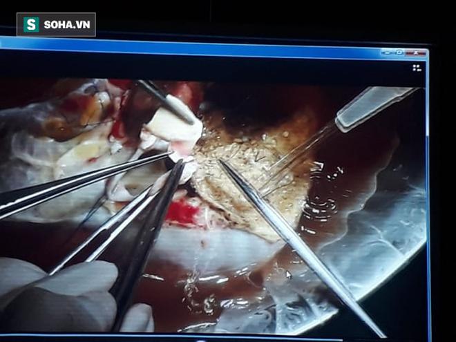 Kỳ tích mới chia đôi gan từ một bệnh nhân chết não và ghép tạng cứu sống 5 người - Ảnh 1.