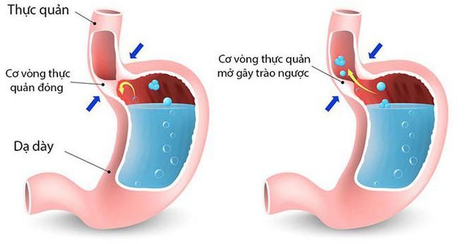 Nếu có 1 trong 4 dấu hiệu sớm nhất của bệnh ung thư dạ dày, tuyệt đối không nên xem nhẹ - Ảnh 5.