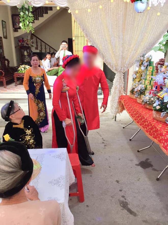 Cô dâu số nhọ và hình ảnh gây sốt: Chống nạng đi ngay trong đám cưới của mình - Ảnh 2.