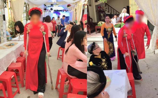 Cô dâu số nhọ và hình ảnh gây sốt: Chống nạng đi ngay trong đám cưới của mình