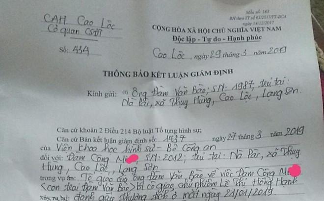 """Lạng Sơn: Đã có kết luận giám định của Công an về vụ """"học sinh có nguy cơ mù mắt nghi do cô giáo chủ nhiệm đánh"""""""