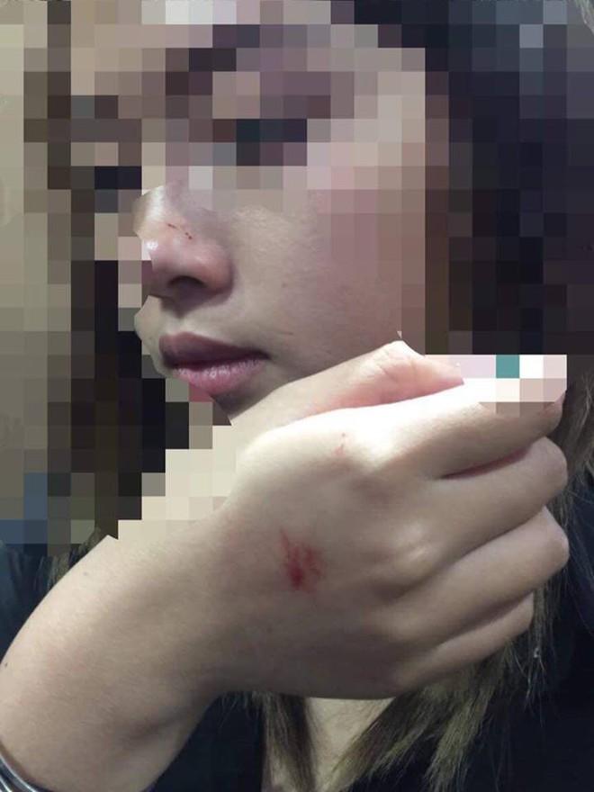 Cô gái bị ép hôn trong thang máy chung cư ở Hà Nội hé lộ danh tính yêu râu xanh - Ảnh 1.