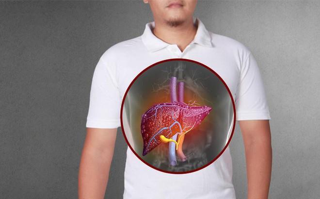 Bệnh viêm gan: Nguyên nhân, triệu chứng và cách chữa bệnh hiệu quả