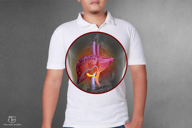 Bệnh viêm gan: Nguyên nhân, triệu chứng và cách chữa bệnh hiệu quả - Ảnh 1.