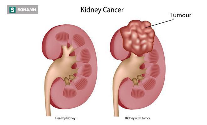 4 yếu tố chủ yếu có thể dẫn đến ung thư thận: Bất kỳ lứa tuổi nào cũng nên biết để tránh - Ảnh 1.