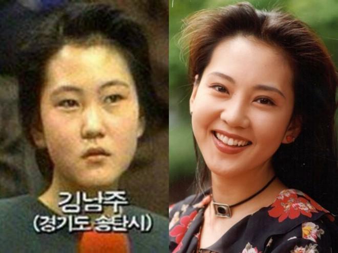 Những màn thay đổi ngoại hình gây sốc nhất lịch sử Kbiz: Kẻ từ kém sắc đổi đời thành nữ thần, người giảm 70kg - Ảnh 46.