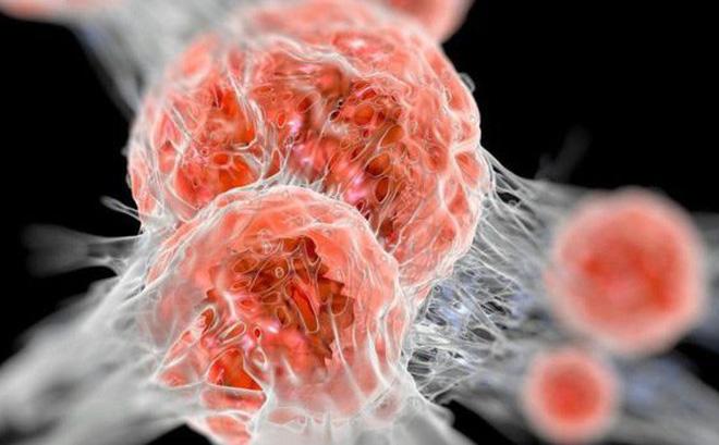 PCT Hội Ung thư chỉ cách phát hiện 3 loại ung thư hay mắc nhất trước khi có dấu hiệu bệnh
