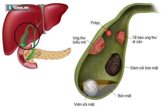 5 loại bệnh vặt không lo chữa, để quá lâu sẽ có nguy cơ tiến triển thành ung thư - Ảnh 1.