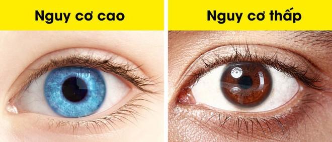 Đọc vị tính cách và sức khỏe qua ngoại hình: Dự đoán khối u ác tính qua đôi mắt - Ảnh 5.