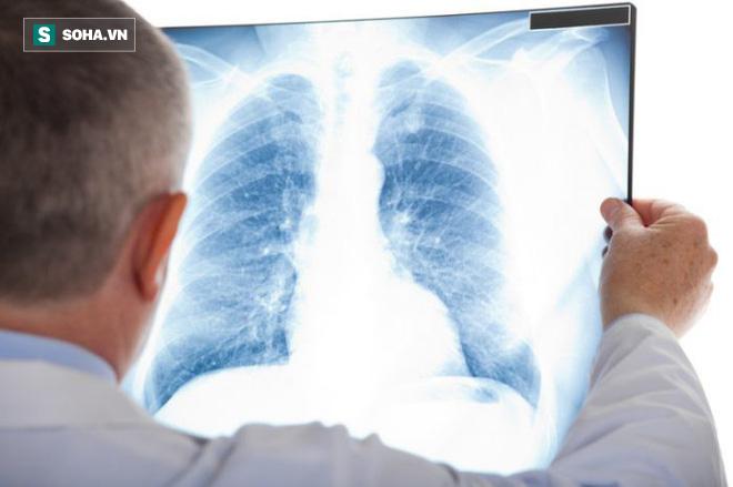 4 nhóm người có nguy cơ ung thư cao: BS khuyên khám ngay, chần chừ 1 năm cũng nguy hiểm - Ảnh 1.