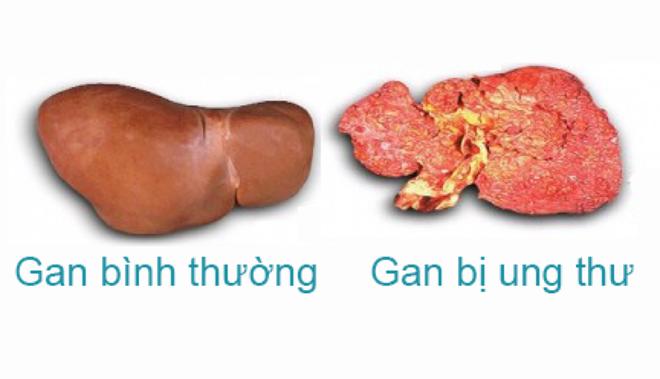 Nếu sợ mắc ung thư gan, đây là 4 việc cấp tốc bạn cần làm ngay để loại trừ mầm bệnh - Ảnh 1.