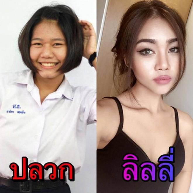 Hot girl bốc lửa Thái Lan bất ngờ công khai ảnh phẫu thuật để có eo con kiến, điều đáng nói đây không phải lần đầu cô lột xác - Ảnh 2.