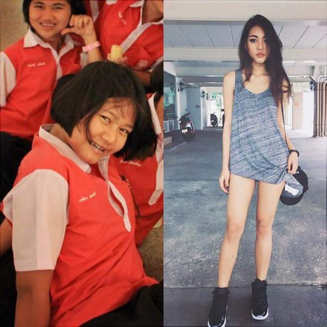 Hot girl bốc lửa Thái Lan bất ngờ công khai ảnh phẫu thuật để có eo con kiến, điều đáng nói đây không phải lần đầu cô lột xác - Ảnh 3.