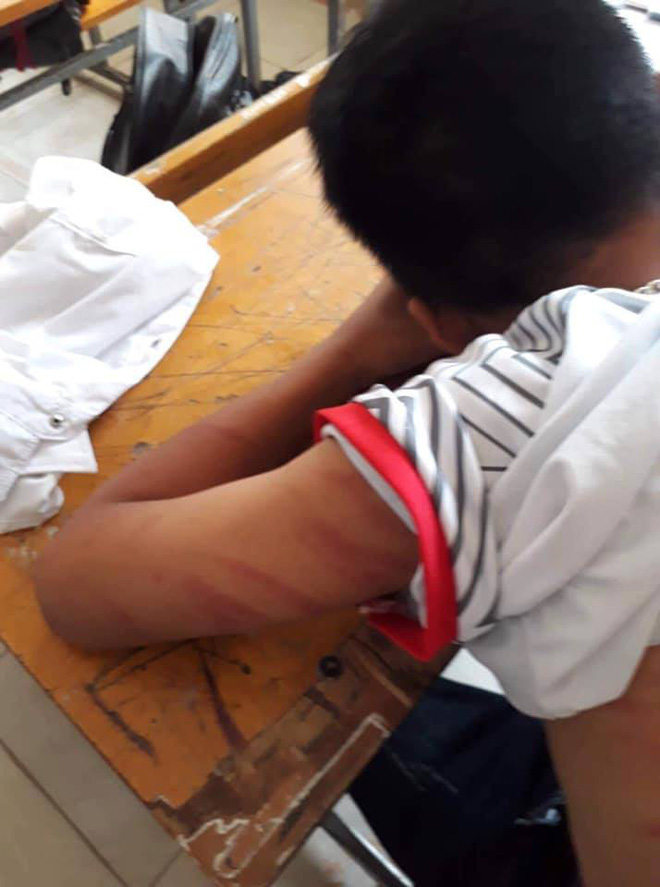 [NÓNG] Học sinh lớp 8 đến trường với cơ thể chằng chịt vết thương, nói bị bố đánh - Ảnh 3.