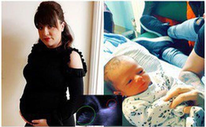 Đi khám thai định kì, người mẹ hoảng hồn khi được bác sĩ thông báo chính bức ảnh siêu âm đã cứu mạng sống của mình