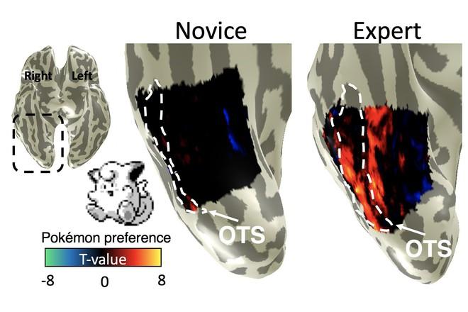 Khoa học rảnh thực sự: Chuyên gia Stanford tìm ra phần não bộ lưu giữ kỹ năng... chơi Pokémon của chúng ta - Ảnh 4.