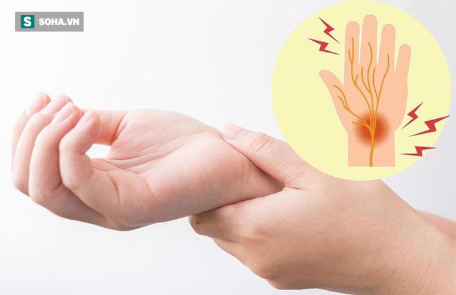 Tẩy sạch mạch máu để ngăn ngừa đột quỵ dựa vào công thức 3 cao, 4 thấp nổi tiếng Đông y - Ảnh 1.
