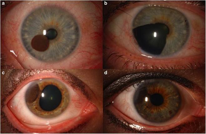 Hóa ra tròng mắt cũng có thể bị ung thư, và những gì xảy đến sau đó sẽ khiến bạn phải giật mình - Ảnh 3.