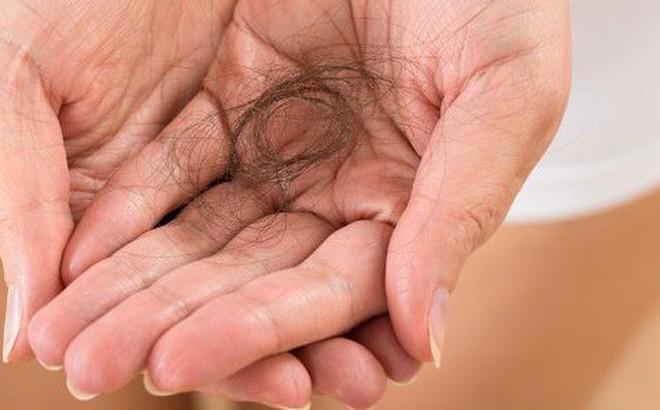 Rụng tóc nhiều có phải tình trạng đáng lo và nguyên nhân do đâu?