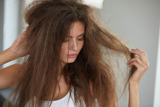 Rụng tóc nhiều có phải tình trạng đáng lo và nguyên nhân do đâu? - Ảnh 2.