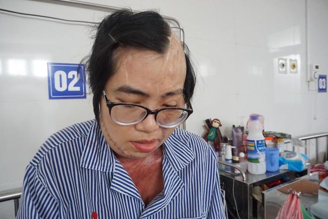 Cô giáo bị chồng tạt axit biến dạng khuôn mặt và tâm sự chua xót của người cha sau 21 lần phẫu thuật của con gái - Ảnh 4.