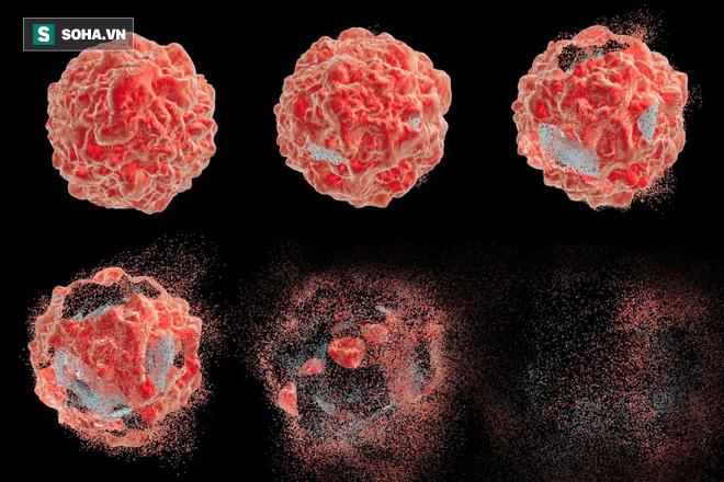 Ai tránh được 6 việc này thì ít mắc ung thư: Hãy nhớ bệnh lớn bắt đầu từ thói quen nhỏ - Ảnh 1.