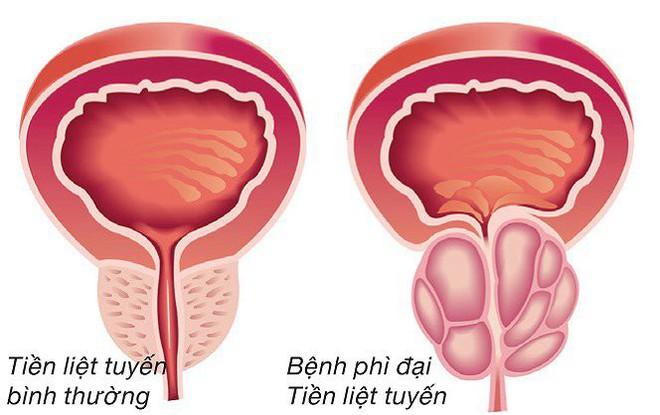 Chuyên gia lý giải nguyên nhân gây phì đại tuyến tiền liệt ở nam giới, triệu chứng và phương pháp điều trị - Ảnh 1.