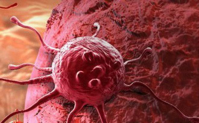 Bạn là người phát hiện ung thư để tự cứu mình chứ không phải bác sĩ: Đây là 3 việc cần làm