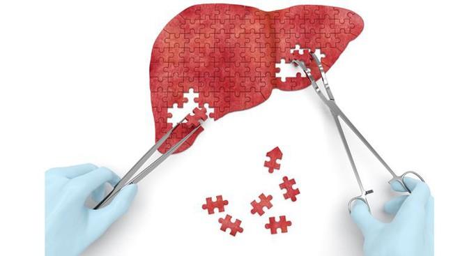BS ung bướu: Đây là những việc bạn có thể làm để ngăn ngừa ung thư gan, rất nên tuân thủ - Ảnh 2.