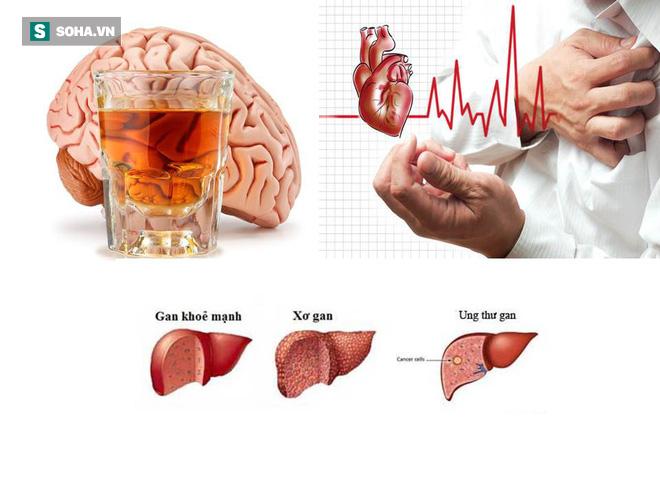 Uống rượu bia thường xuyên: 5 cơ quan nội tạng bốc hơi đáng giật mình - Ảnh 1.