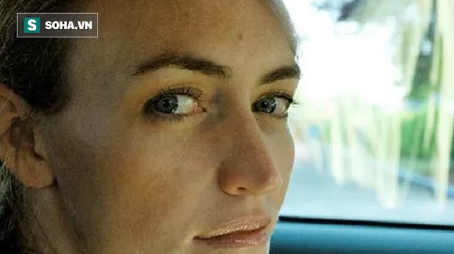 Giải mã ý nghĩa của các vị trí nốt ruồi trên khuôn mặt - Ảnh 3.