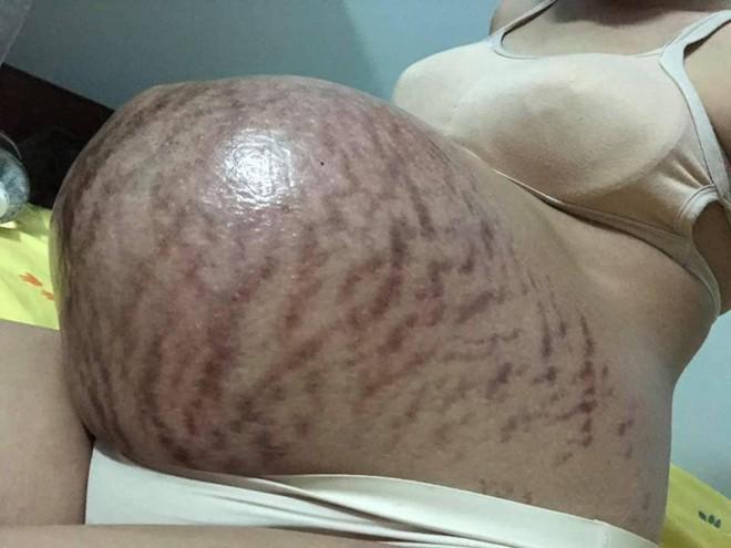 Hình ảnh chiếc bụng của mẹ trước và sau sinh gây bão nhất ngày 1/6: Để có những đứa con chào đời, cái giá của mẹ là đây - Ảnh 1.