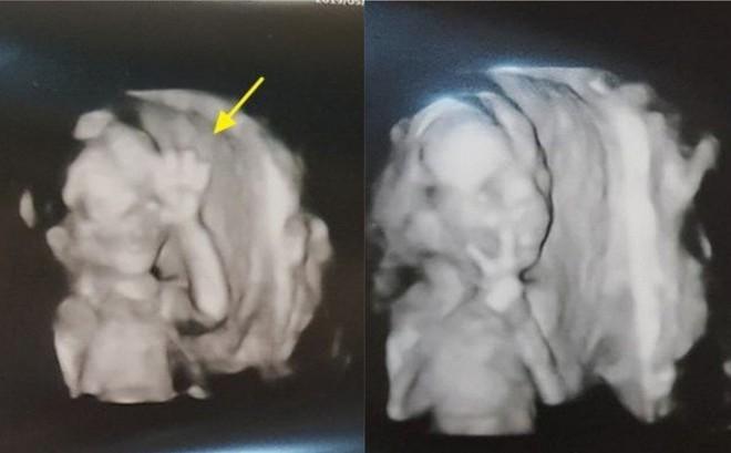 Chụp ảnh siêu âm mà giơ tay chào đủ kiểu, em bé từ trong bụng mẹ đã được dự đoán tương lai sau này vô cùng xán lạn