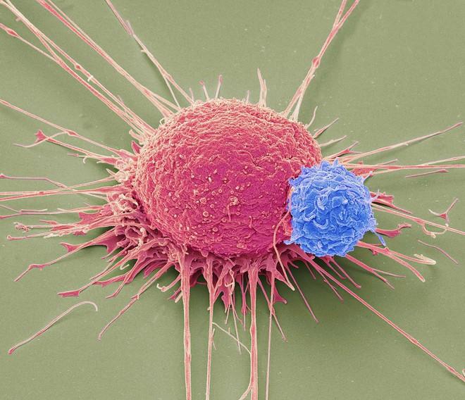 3 nguyên tắc ăn uống thực liệu để giảm nhẹ bệnh cho người bị ung thư: Làm đúng sống lâu - Ảnh 1.