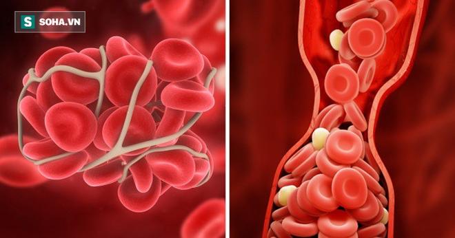 10 cách để ngăn ngừa cục máu đông có thể cứu sống bạn: Đừng bỏ lỡ thông tin quý giá - Ảnh 1.