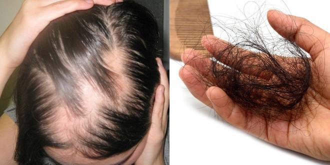 Những sai lầm khi điều trị rụng tóc và lời khuyên của chuyên gia da liễu giúp khắc phục toàn diện, lâu dài - Ảnh 1.