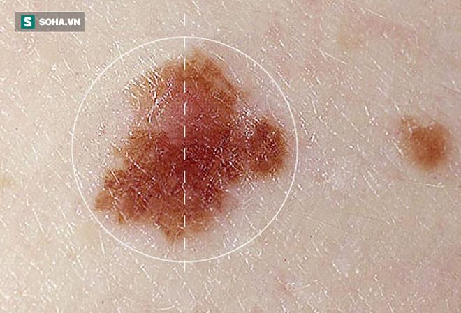 Ung thư da dễ xuất hiện ở 6 vùng này trước tiên: Hãy cẩn thận đi khám nếu thấy bất thường - Ảnh 1.