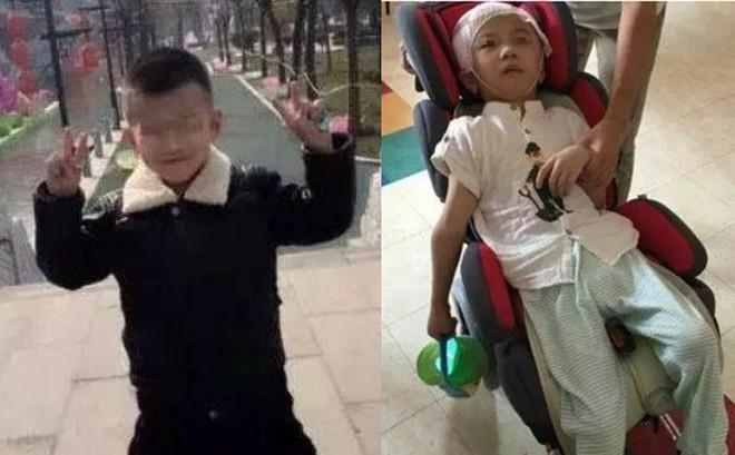 Bé trai 6 tuổi bị mẹ kế bạo hành đến tổn thương 75% não phải sống đời thực vật, bố ruột biết chuyện bỏ trốn mất dạng