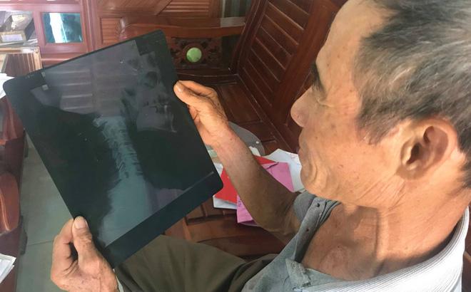Cựu binh cầu cứu vì mảnh đạn còn trong người nhưng bị cắt chế độ thương binh, truy thu tiền 9 năm