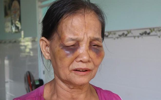 Bình Phước: Con dâu đánh mẹ chồng sưng mặt rồi lại ngồi xuống khóc lóc xin lỗi
