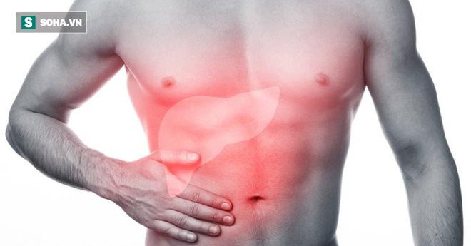 6 nhóm người có nguy cơ cao bị gan nhiễm mỡ: Cần điều chỉnh ngay trước khi quá muộn - Ảnh 2.
